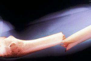 tratamento de fratura de fêmur composto prevenção de recuperação de cirurgia enfrentamento