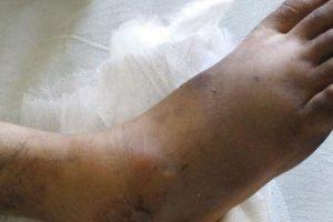 tratamento de luxação do pé