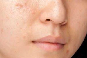 tratamento para acne adulta