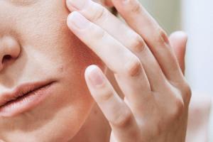 tratamento para eczema