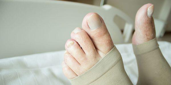 trombose venosa profunda ou dvt dor constante