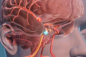 você pode consertar um aneurisma cerebral