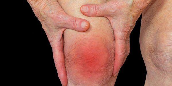 10 tipos diferentes de artrite