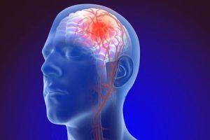 Como você evita um aneurisma cerebral