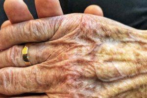 Quais são os sintomas secundários da doença de Parkinson