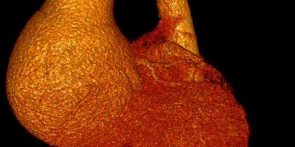 Qual é o tamanho normal da raiz da aorta
