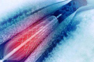 Quanto tempo leva um angiograma e colocação do stent