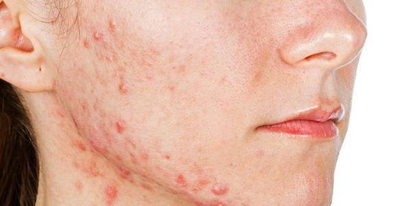 acne cística