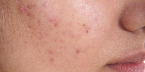 acne crônica