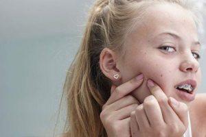 acne em adolescentes