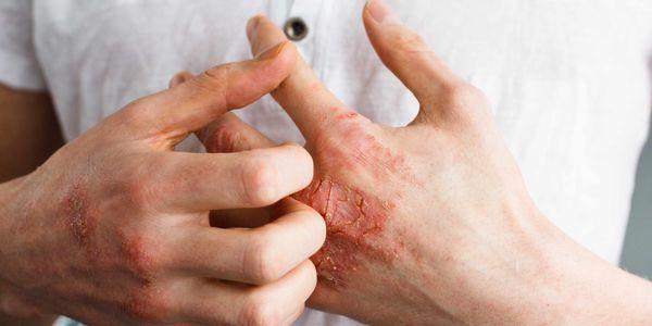 alergia a lixívia