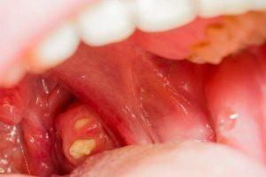 amigdalite ou infecção de amígdalas