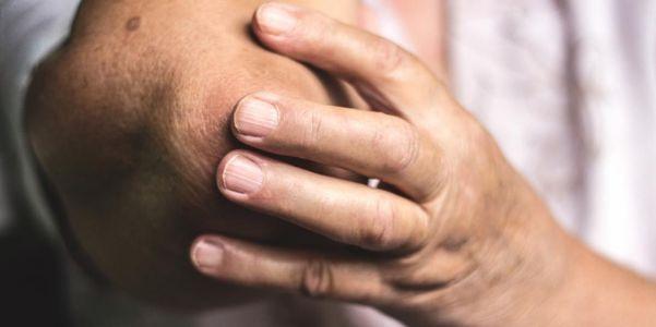 artrite reumatóide do cotovelo