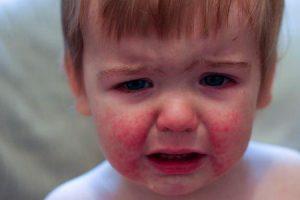 bochechas vermelhas ou doença da bochecha