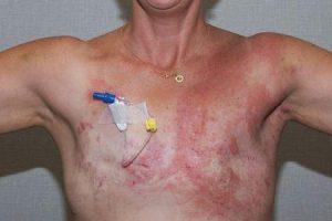câncer de mama inflamatório