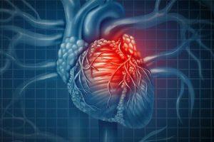 cardiomiopatia restritiva causa tratamento dos sintomas