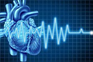 cardiomiopatia ventricular direita arritmogênica e exercício