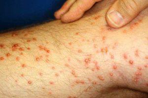 causas comuns de inchaços vermelhos nas pernas