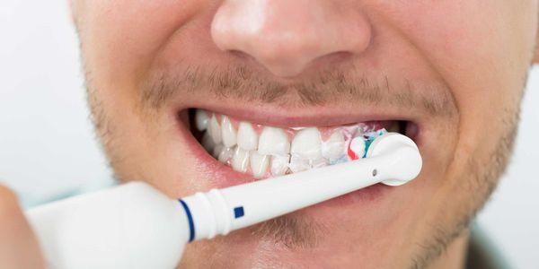 causas de manchas marrons nos dentes e maneiras de removê-los