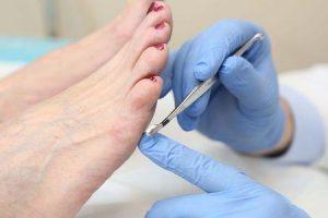 causas de neuropatia em pés e o que pode ser feito para isso