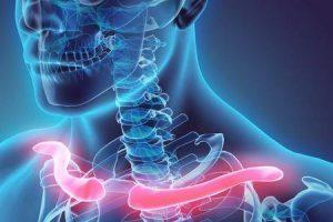 clavícula quebrada ou fratura de clavícula