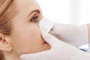 colapso da válvula nasal