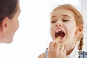 como é a amigdalite e que a tonsilite é contagiosa