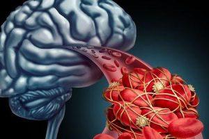 como eles removem um aneurisma cerebral