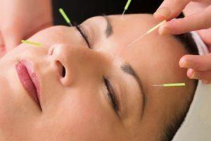 condições médicas que a acupuntura pode tratar