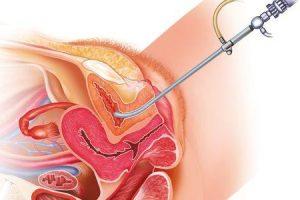 contratura do colo da bexiga