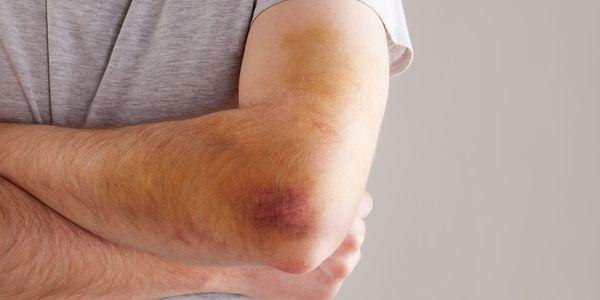 contusão do cotovelo ou cotovelo machucado