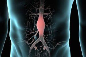 correção de aneurisma da aorta abdominal