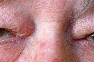 cutis laxa ou dermatocalasia