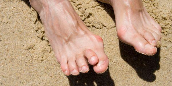 dedo do pé do martelo ou dedo do pé contratado