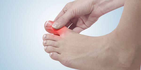 dedo do pé torcido