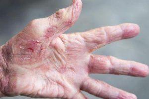 dedos enrugados ou dedos pruney