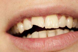 dente lascado