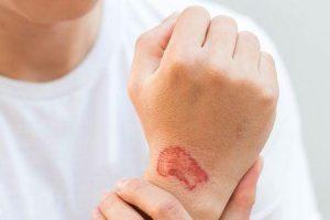 doença de pele relacionada com o trabalho ou doença de pele ocupacional