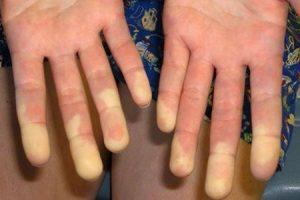doença do tecido conjuntivo