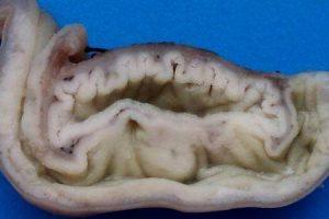duplicação intestinal ou duplicação entérica