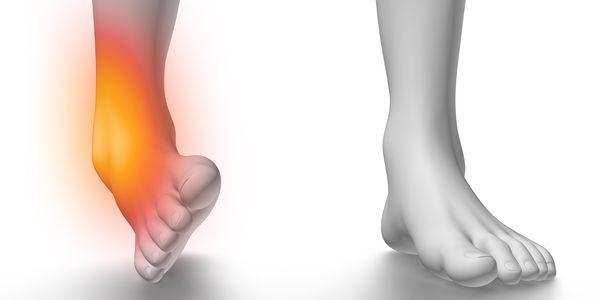 entorse de articulação do tornozelo