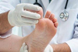 esporão de osso no dedão do pé