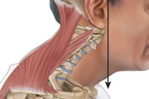 estirpe semispinalis capitis ou dor