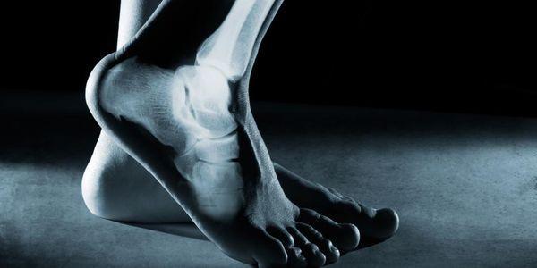 fratura articular do joelho