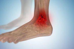 fratura articular do tornozelo ou tornozelo quebrado