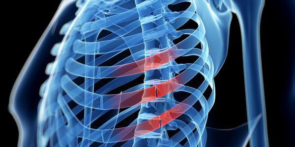 fratura de costela ou costela quebrada