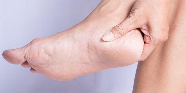 fratura do calcâneo ou osso do calcanhar quebrado