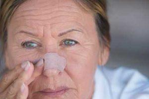 fratura nasal ou nariz quebrado