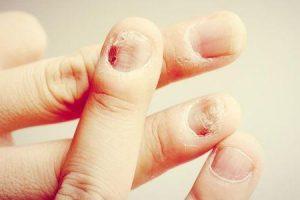 gangrena contagiosa e quão rápido pode espalhar gangrena