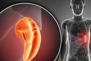 hepatectomia e esplenectomia